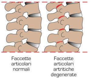 Faccette articolari