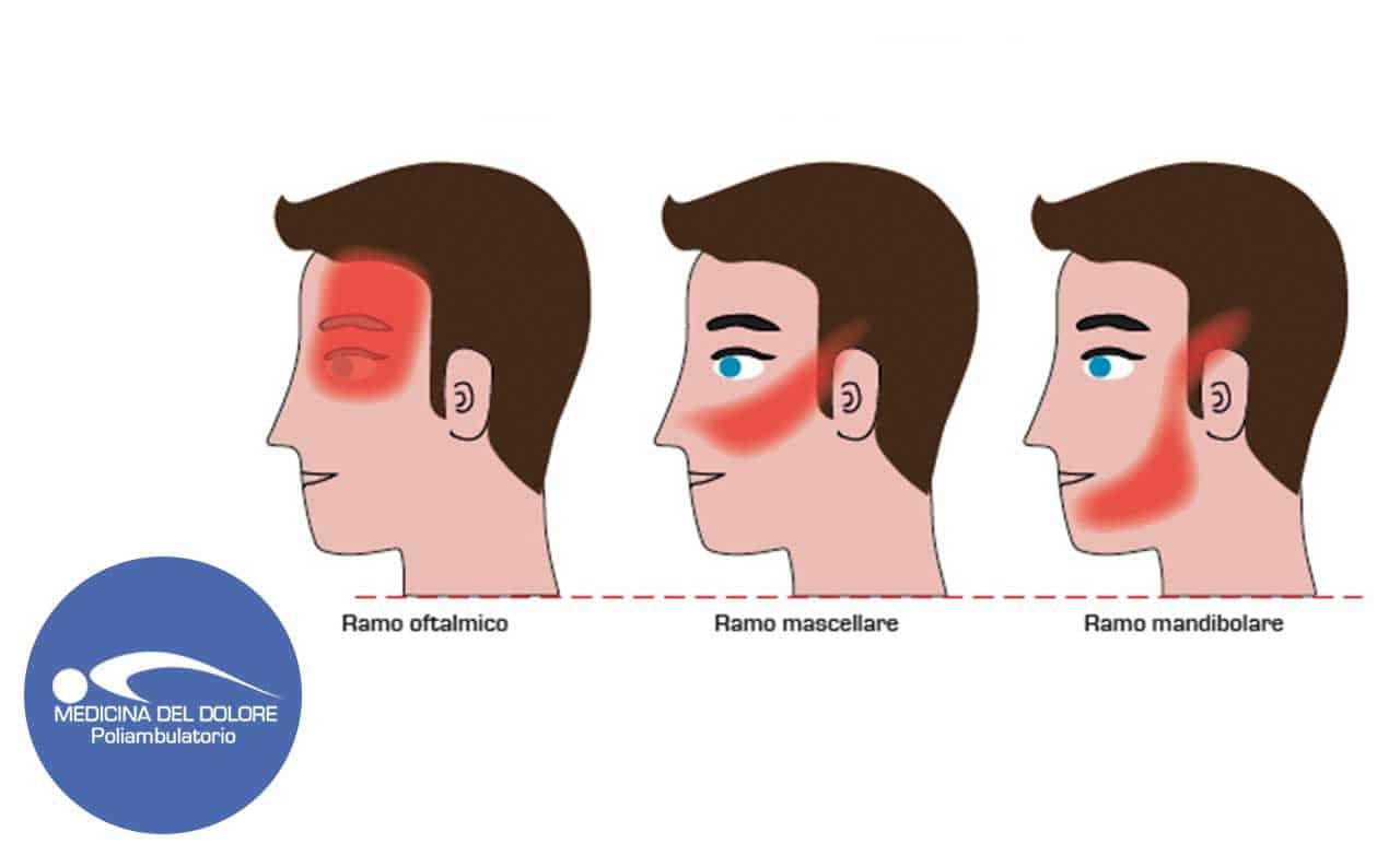 Dolore facciale atipico