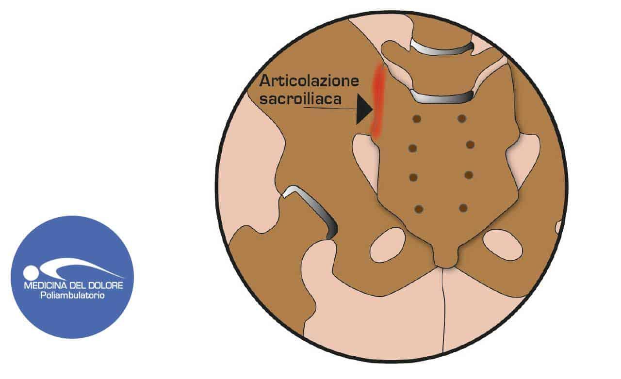 Patologia articolazione sacroiliaca